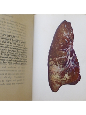 Tuberculosis, an account of their origin and treatment from the earliest times up to and including the present, Freeman Hall 1911