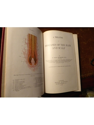 A Treatise on the Diseases of the Hair and Scalp, S Dana Hubbard, Henry Kimpton,London, 1928 First Edition